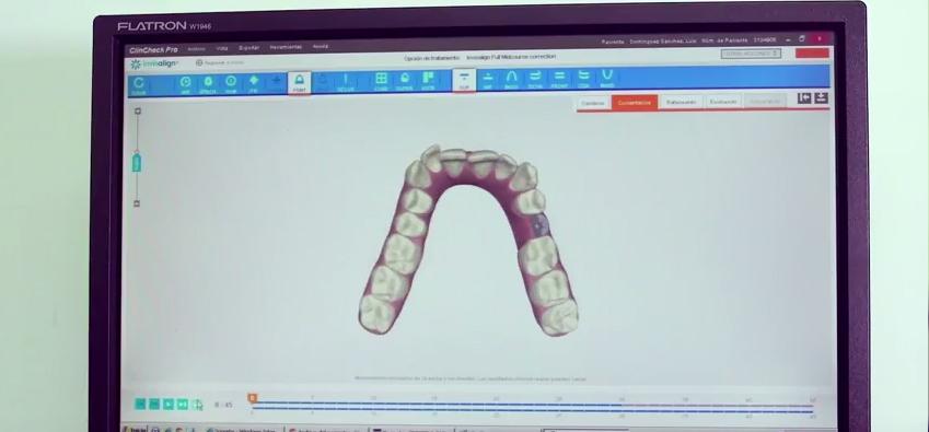 ortodoncia-invisible-invisalign-malaga-gross-dentistas-4