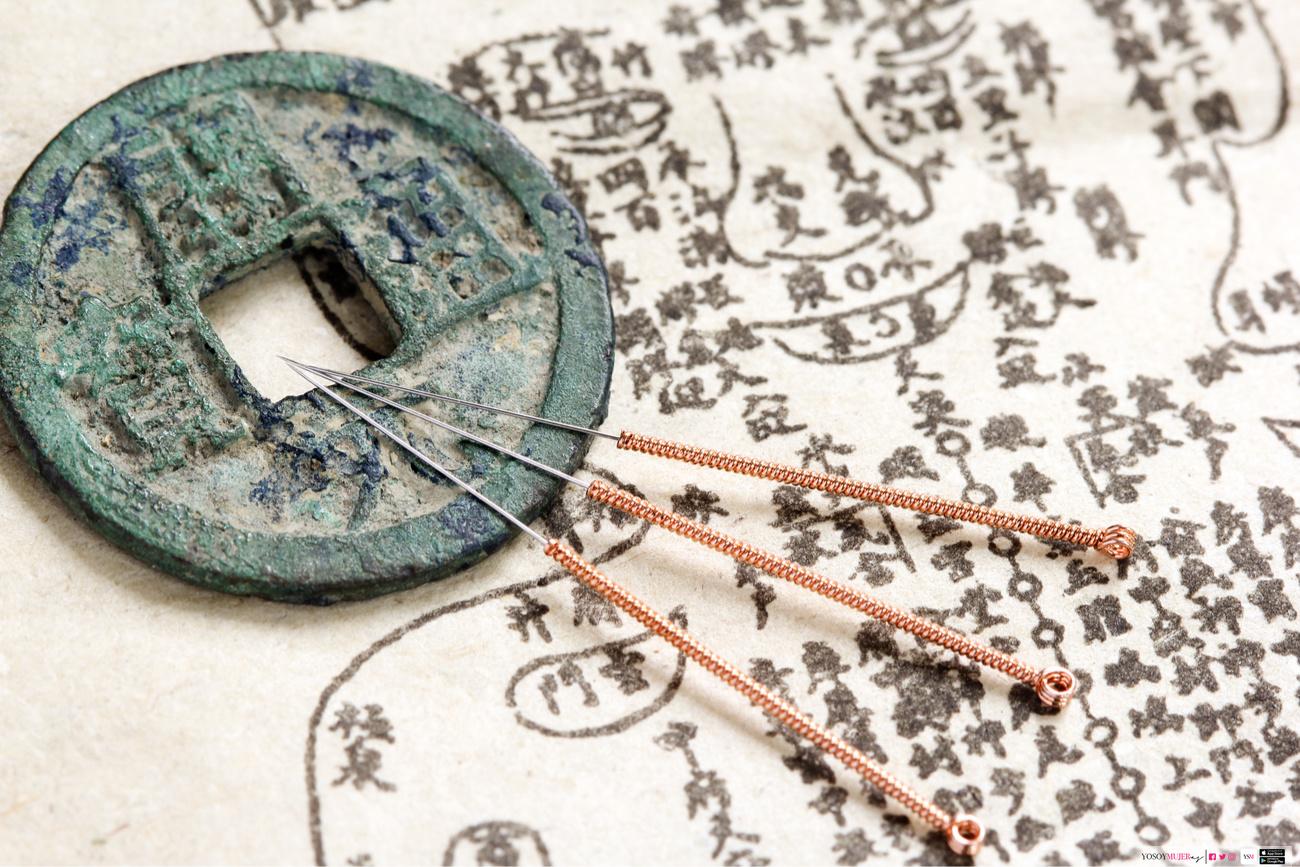 la acupuntura hace perder peso